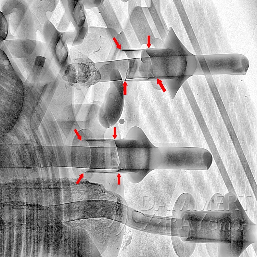 THT-Lötfehler festgestellt mit Röntgentechnik an einem defekt-Bauteil